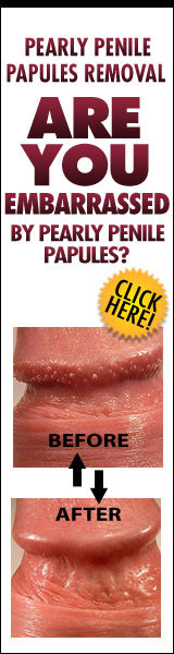Penile Papules Removal Naturally