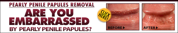 How To Treat Pearly Penile Papules Naturally